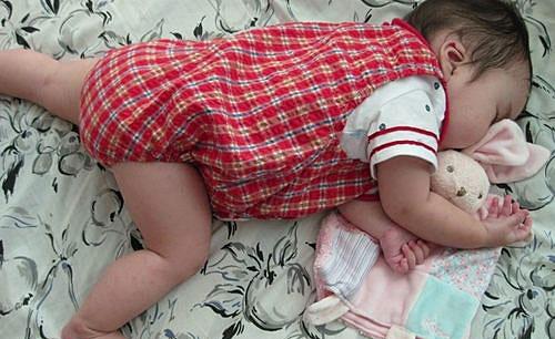 赤ちゃん スキンケア